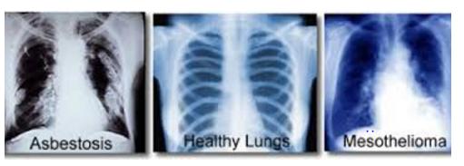 Skärmklipp-asbestos lungs